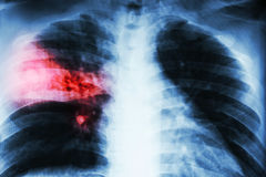 Lobar pneumonia . film chest x-ray show alveolar infiltration at right middle lobe due to tuberculosis infection . royalty free stock photos