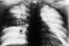 Lobar Pneumonia. Film chest x-ray show patchy infiltrate at right middle lung from Mycobacterium tuberculosis infection & x28; Pulmonary tuberculosis & x29 Royalty Free Stock Photos