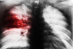 Lobar Pneumonia. Film chest x-ray show patchy infiltrate at right middle lung from Mycobacterium tuberculosis infection & x28; Pulmonary tuberculosis & x29 Stock Photography