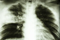 Lobar pneumonia. Film X-ray show patchy infiltrate at right middle lung (Lobar pneumonia)from Mycobacterium tuberculosis infection (Pulmonary tuberculosis Stock Images