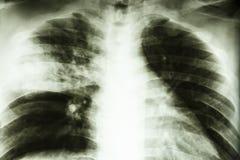 Lobar pneumonia Stock Images