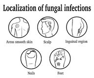 The localization of fungal infections Royalty Free Stock Photos