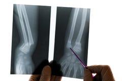 Lokalisierter Röntgenstrahl des Radialstrahl- und Ellenknochens Der Doktor hält einen Zeiger in seiner Hand und zeigt einen Bruch lizenzfreie stockfotografie