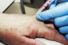 Lokalna anestezja na ręce Fotografia Royalty Free