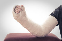 Long arm plaster / fiberglass cast resting on ottoman. An old fashioned white long arm plasters cast covering the wrist, arm, and elbow, resting on an ottoman royalty free stock images