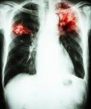 Long tuberculose Royalty-vrije Stock Afbeeldingen