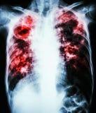 Long tuberculose Royalty-vrije Stock Foto's