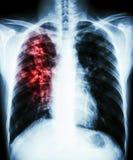 Long tuberculose Royalty-vrije Stock Fotografie