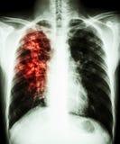 Long tuberculose Stock Foto