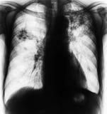 Long tuberculose Stock Afbeeldingen