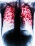 Long tuberculose Stock Afbeelding