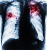 Long tuberculose Royalty-vrije Stock Afbeelding