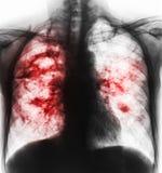 Long tuberculose De filmröntgenstraal van borst toont holte bij juiste long en interstitial infiltreert beide long toe te schrijv Royalty-vrije Stock Fotografie