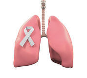 Longen en Lung Cancer Awareness Ribbon Royalty-vrije Stock Foto's