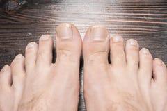 Longs ongles de pied Photos libres de droits