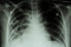 Longtuberculose (TB): De borströntgenstraal toont alveolare infiltratie bij beide long toe te schrijven aan de besmetting van de  royalty-vrije stock afbeeldingen