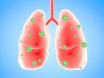 Longziekte met bacteriëncellen Royalty-vrije Stock Foto's