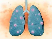 Longziekte met bacteriëncellen Stock Foto