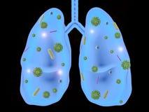 Longziekte met bacteriëncellen Stock Foto's