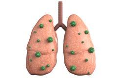 Longziekte met bacteriëncellen Stock Afbeelding