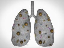 Longziekte met bacteriëncellen Stock Fotografie