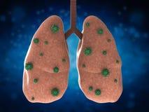 Longziekte met bacteriëncellen Royalty-vrije Stock Fotografie