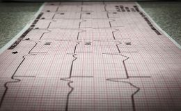 12-lood electrocardiogram van een Patiënt die afgemeten zijn royalty-vrije stock afbeeldingen
