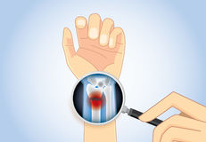 Looking inner wrist fracture with Magnifier. Royalty Free Stock Photography