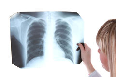 Looking to x-ray picture Stock Photography