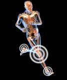 Lopende mens die door x-raywith-x pijn in de benen wordt gezien Royalty-vrije Stock Fotografie