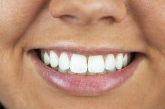 Los dientes blanqueados perfeccionan sonrisa imagen de archivo libre de regalías