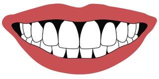 Los dientes delanteros de los labios abren el concepto blanco de la odontología de los dientes delanteros de la boca Fotos de archivo libres de regalías