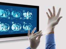 Los doctores Hands con la pantalla del MRT Imágenes de archivo libres de regalías