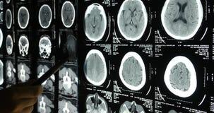 los doctores 4k estudian la película de radiografía del cerebro del cráneo para el análisis hospital médico de la salud