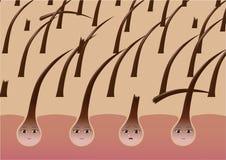 Los folículos de pelo de la historieta en el cuero cabelludo sufren de fragilidad stock de ilustración