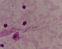 Los glóbulos blancos con la aguja cristalina del ácido úrico forman fotografía de archivo libre de regalías