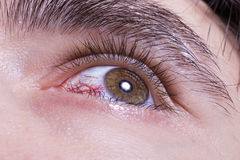 Los hombres verdes eye con los vasos sanguíneos rojos Imagen de archivo libre de regalías