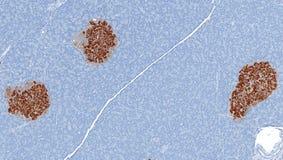 Los islotes de Langerhans mancharon el marrón para la insulina Fotografía de archivo libre de regalías