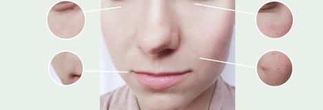 Los ojos de la mujer arrugan contraste del concepto de la terapia de la corrección de la diferencia del efecto de piel del bloati fotografía de archivo