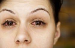 Los ojos de la mujer enferma Fotos de archivo libres de regalías