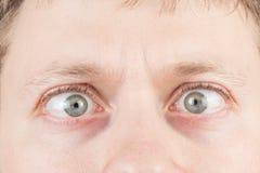 Los ojos locos del hombre Imagen de archivo libre de regalías