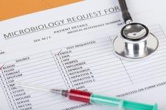 Los resultados microbiológicos del análisis de sangre muestran el positivo para el virus de Ebola Imágenes de archivo libres de regalías