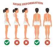 Los tipos de la deformación de la espina dorsal y la comparación sana de la espina dorsal diagram el cartel ilustración del vector