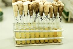 Los tubos de ensayo están en el trípode, frascos amarillos, trabajo en un laboratorio médico, tubos de ensayo en los estantes, ex Imagen de archivo