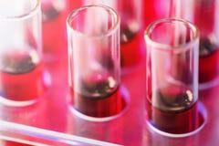 Los tubos de ensayo se cierran para arriba arreglado en laboratorio médico Médico cure fotos de archivo libres de regalías