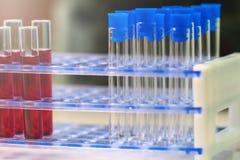 Los tubos de ensayo se cierran para arriba arreglado en laboratorio médico Médico cure imagen de archivo libre de regalías