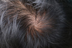 Lose one's hair. Stock Images