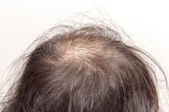 Lose ones hair glabrous baldy loss Royalty Free Stock Image