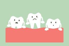 Loser Zahn vektor abbildung
