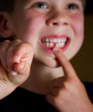 Losing first tooth Stock Images